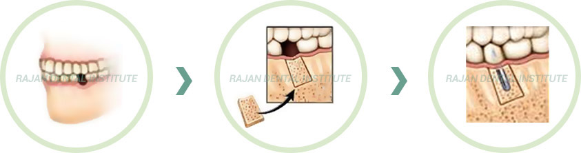 Bone Grafting tratment India